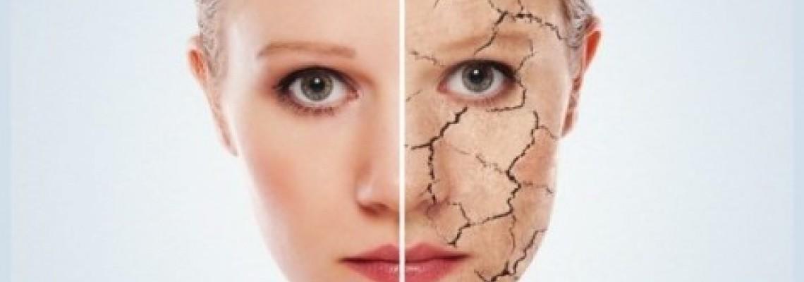 خشکی پوست در چه افرادی شایعتر است؟